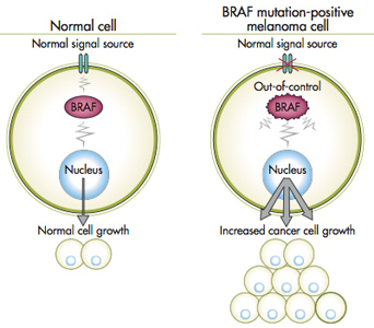 Braf Mutation In Metastatic Melanoma Incyte Diagnostics